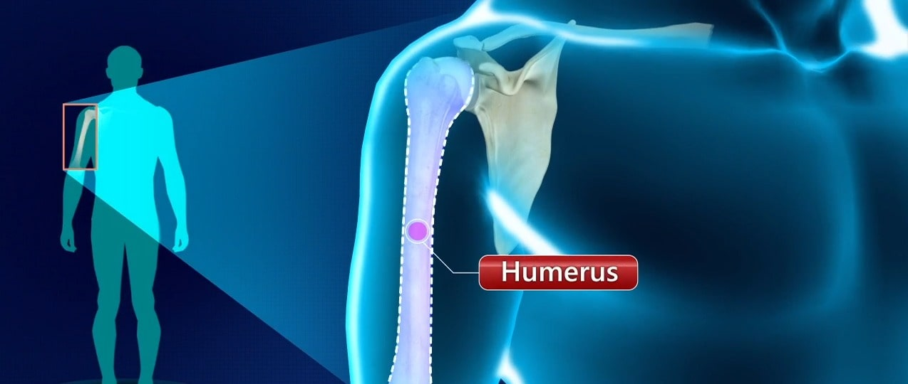Management of the Closed Fracture of the Humerus